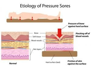Ulcera_por_presion1